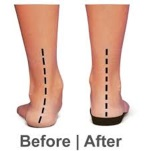 adult flat foot orthotics