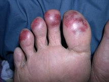 chilblains avoid fire