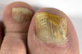 fungal infection of toenails